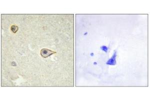 Immunohistochemistry (IHC) image for anti-Cytochrome P450, Family 19, Subfamily A, Polypeptide 1 (CYP19A1) antibody (ABIN1850332)