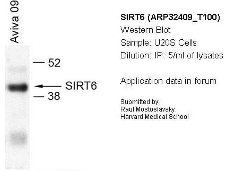 Image no. 2 for anti-Sirtuin 6 (SIRT6) (N-Term) antibody (ABIN182566)