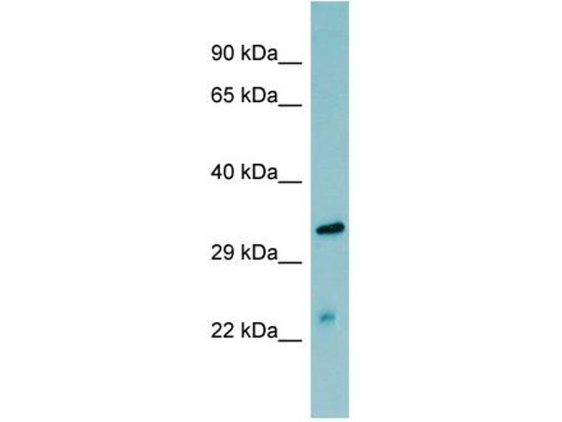 Western Blotting (WB) image for anti-Mannan-Binding Lectin serine Peptidase 2 (MASP2) (N-Term) antibody (ABIN2776885)