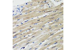 Image no. 2 for anti-B-Cell Receptor-Associated Protein 29 (BCAP29) antibody (ABIN6137475)