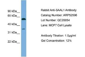 Image no. 2 for anti-serum Amyloid A-Like 1 (SAAL1) (N-Term) antibody (ABIN2784999)