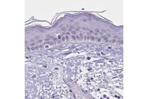 Immunohistochemistry (Paraffin-embedded Sections) (IHC (p)) image for anti-Wingless-Type MMTV Integration Site Family, Member 9B (WNT9B) antibody (ABIN4366213)