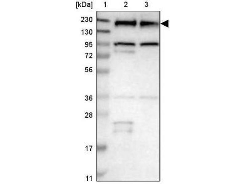 Western Blotting (WB) image for anti-Epidermal Growth Factor Receptor (EGFR) antibody (ABIN4307205)