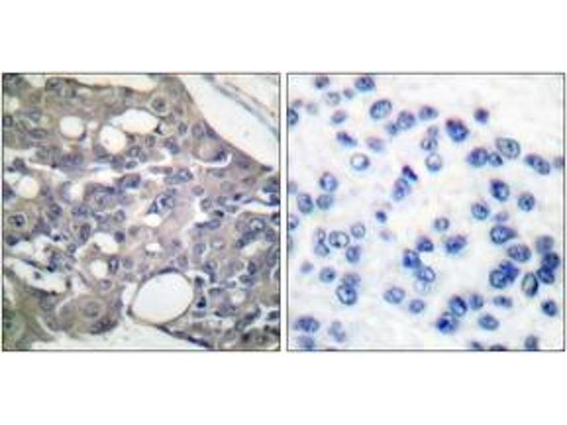 Immunohistochemistry (IHC) image for anti-PTPN6 antibody (Protein-tyrosine Phosphatase 1C) (pTyr536) (ABIN1531195)