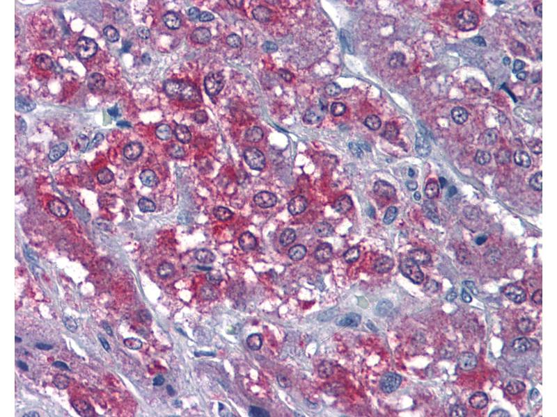 Immunohistochemistry (IHC) image for anti-Calcium/calmodulin-Dependent Protein Kinase II alpha (CAMK2A) (AA 455-468) antibody (ABIN574315)