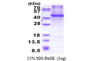 Image no. 1 for Breast Cancer Anti-Estrogen Resistance 1 (BCAR1) (AA 465-848) protein (His tag) (ABIN5853517)