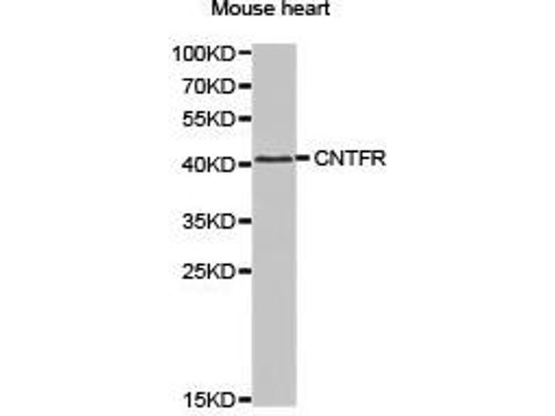 Western Blotting (WB) image for anti-Ciliary Neurotrophic Factor Receptor (CNTFR) antibody (ABIN1871941)