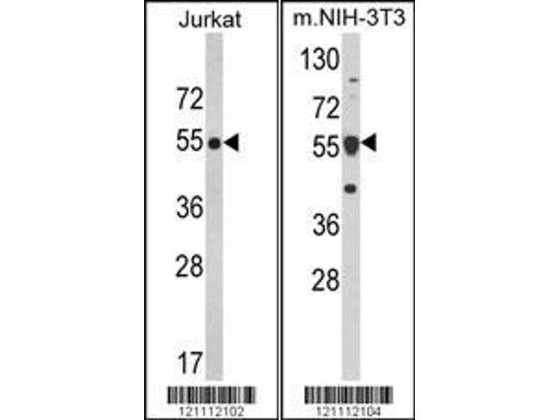 Western Blotting (WB) image for anti-Calreticulin antibody (CALR) (AA 277-305) (ABIN390885)