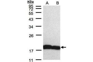 Image no. 3 for anti-Peptidylprolyl Isomerase A (Cyclophilin A) (PPIA) (C-Term) antibody (ABIN2855908)