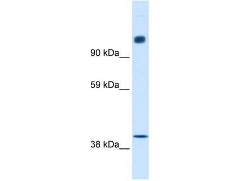 Western Blotting (WB) image for anti-Nuclear Receptor Co-Repressor 1 (NCOR1) (N-Term) antibody (ABIN927384)