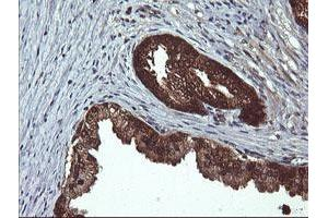 Image no. 7 for anti-D-Dopachrome Tautomerase (DDT) antibody (ABIN1497795)