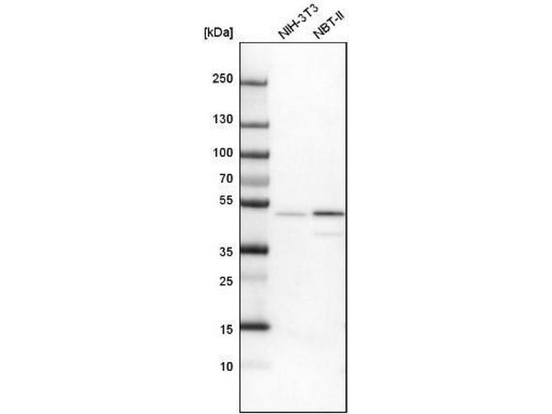 Western Blotting (WB) image for anti-Vasodilator-Stimulated phosphoprotein (VASP) antibody (ABIN4364869)