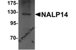 Image no. 2 for anti-NLR Family, Pyrin Domain Containing 14 (NLRP14) (N-Term) antibody (ABIN1031469)
