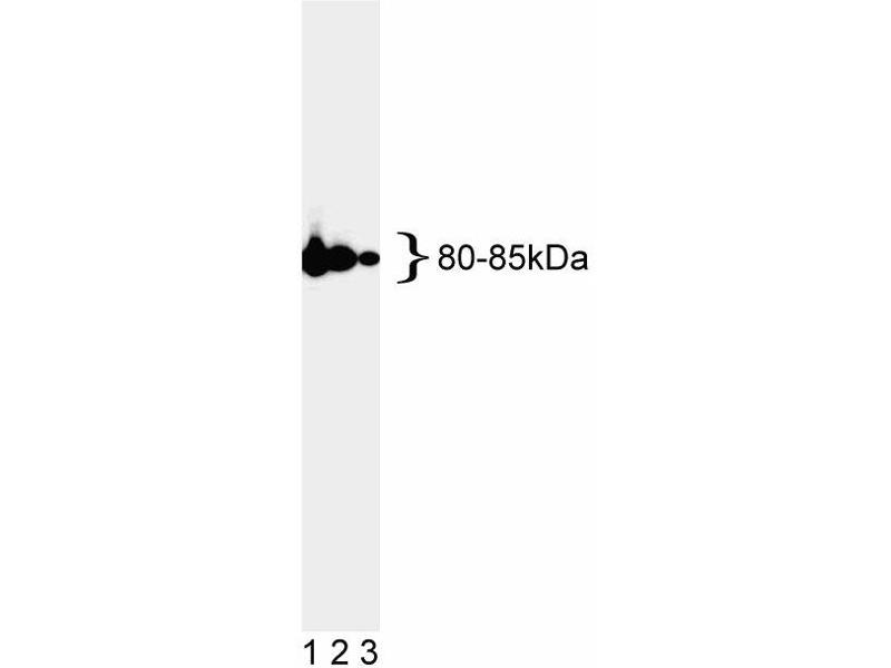 Western Blotting (WB) image for anti-MLH1 antibody (MutL Homolog 1, Colon Cancer, Nonpolyposis Type 2 (E. Coli)) (ABIN967315)