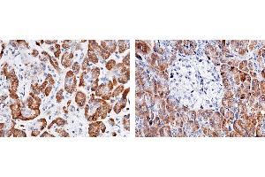 Image no. 1 for anti-Carboxypeptidase A2 (Pancreatic) (CPA2) (AA 1-417) antibody (ABIN1996957)
