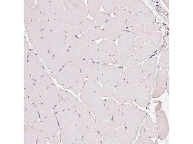 Immunohistochemistry (Paraffin-embedded Sections) (IHC (p)) image for anti-ATP-Binding Cassette, Sub-Family B (MDR/TAP), Member 4 (ABCB4) antibody (ABIN4333373)