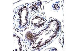 Immunohistochemistry (Paraffin-embedded Sections) (IHC (p)) image for anti-E2F Transcription Factor 1 (E2F1) antibody (ABIN269710)