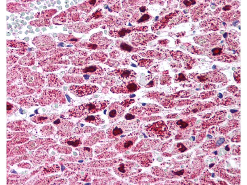 Immunohistochemistry (IHC) image for anti-Peroxisome Proliferator-Activated Receptor gamma (PPARG) (Internal Region) antibody (ABIN214562)