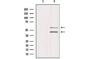 Western Blotting (WB) image for anti-Mitogen-Activated Protein Kinase 8 (MAPK8) antibody (ABIN6262710)