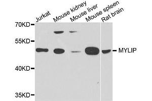 Image no. 1 for anti-Myosin Regulatory Light Chain Interacting Protein (MYLIP) antibody (ABIN6144262)