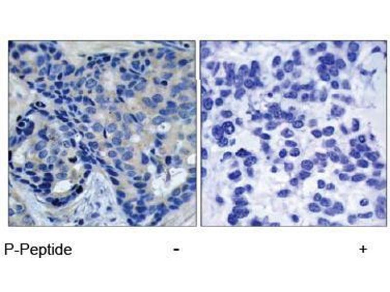 Image no. 1 for anti-PTK2B Protein tyrosine Kinase 2 beta (PTK2B) (pTyr402) antibody (ABIN196952)