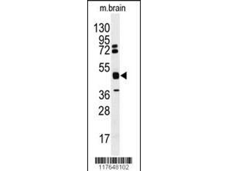 Western Blotting (WB) image for anti-Heterogeneous Nuclear Ribonucleoprotein K (HNRNPK) (AA 1-30), (N-Term) antibody (ABIN389377)