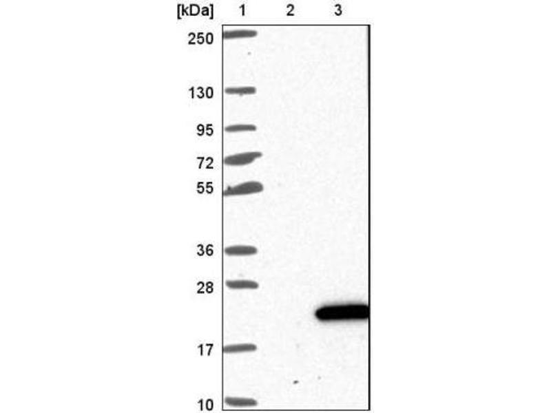 Western Blotting (WB) image for anti-CDK2AP2 Antikörper (Cyclin-Dependent Kinase 2 Associated Protein 2) (ABIN4297050)