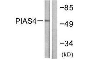 Western Blotting (WB) image for anti-PIAS4 Antikörper (Protein Inhibitor of Activated STAT, 4) (ABIN1533435)