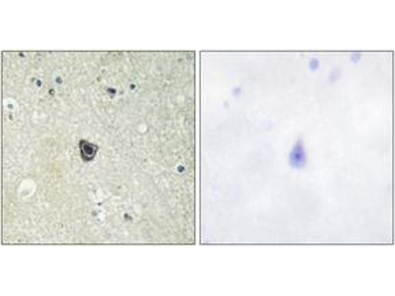Immunohistochemistry (IHC) image for anti-Colony Stimulating Factor 1 Receptor (CSF1R) (AA 781-830) antibody (ABIN1532577)