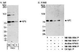 Western Blotting (WB) image for anti-Myeloid/lymphoid Or Mixed-Lineage Leukemia (Trithorax Homolog, Drosophila), Translocated To, 3 (MLLT3) (C-Term) antibody (ABIN151110)