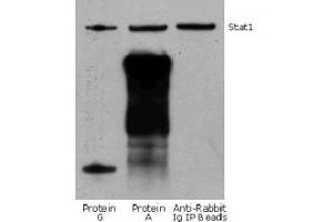 Image no. 4 for Fluorescent TrueBlot®: Anti-Rabbit IgG Fluorescein (ABIN6698841)