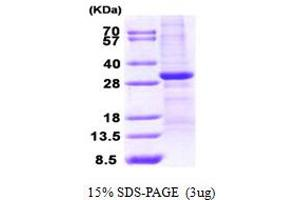Image no. 1 for WW Domain Containing Oxidoreductase (WWOX) (AA 1-234) protein (His tag) (ABIN667111)