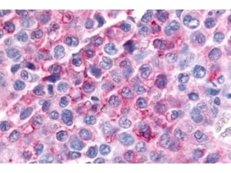 Immunofluorescence (Paraffin-embedded Sections) (IF (p)) image for anti-Misshapen-Like Kinase 1 (MINK1) antibody (ABIN4332667)