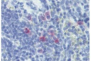 Immunohistochemistry (Paraffin-embedded Sections) (IHC (p)) image for anti-IL-13 antibody (Interleukin 13) (ABIN4324500)