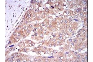 Immunohistochemistry (Paraffin-embedded Sections) (IHC (p)) image for anti-Caspase 8, Apoptosis-Related Cysteine Peptidase (CASP8) antibody (ABIN4288173)