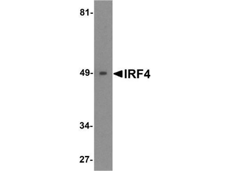 Western Blotting (WB) image for anti-Interferon Regulatory Factor 4 (IRF4) (C-Term) antibody (ABIN4327575)