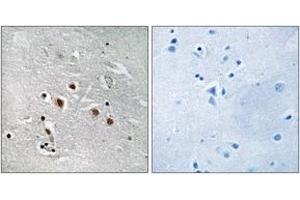 Image no. 1 for anti-Mediator Complex Subunit 13-Like (MED13L) (AA 449-498) antibody (ABIN1535015)