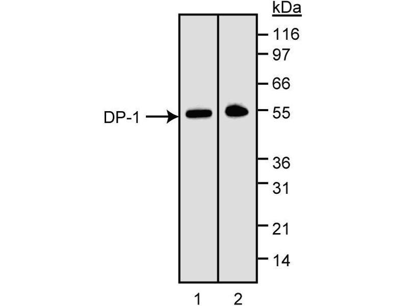 Western Blotting (WB) image for anti-TGM4 antibody (Transglutaminase 4 (Prostate)) (ABIN967535)
