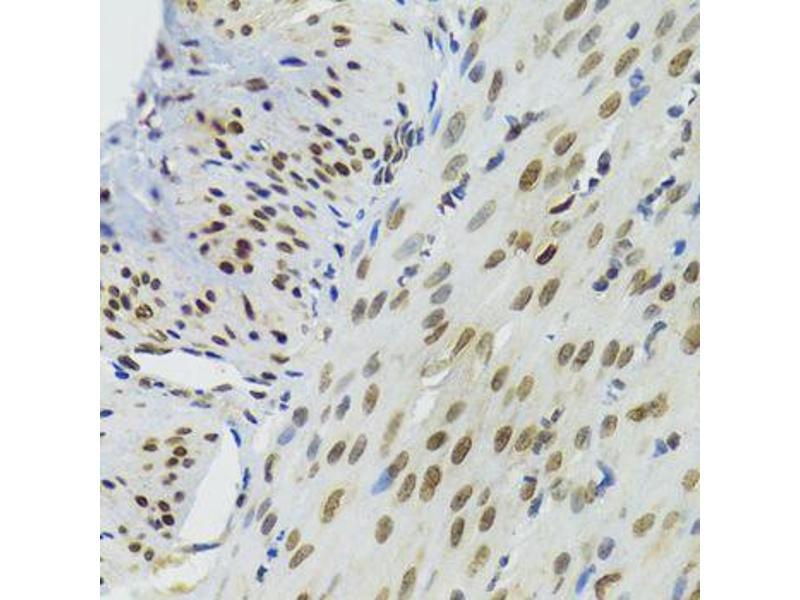 Immunohistochemistry (Paraffin-embedded Sections) (IHC (p)) image for anti-Bromodomain Adjacent To Zinc Finger Domain, 1B (BAZ1B) antibody (ABIN3068765)