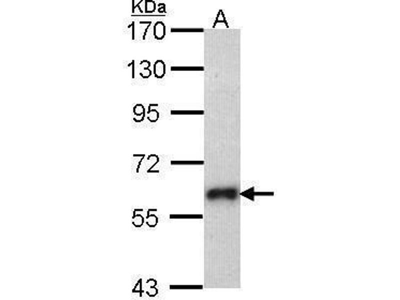 Western Blotting (WB) image for anti-SOCS5 antibody (Suppressor of Cytokine Signaling 5) (N-Term) (ABIN2855921)