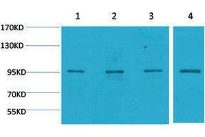 Western Blotting (WB) image for anti-Mitogen-Activated Protein Kinase 6 (MAPK6) antibody (ABIN3181516)