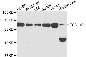 Image no. 1 for anti-Zinc Finger CCCH-Type Containing 15 (ZC3H15) antibody (ABIN6566756)