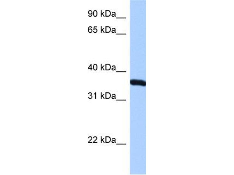 Western Blotting (WB) image for anti-Ribosomal Protein, Large, P0 (RPLP0) (N-Term) antibody (ABIN310003)