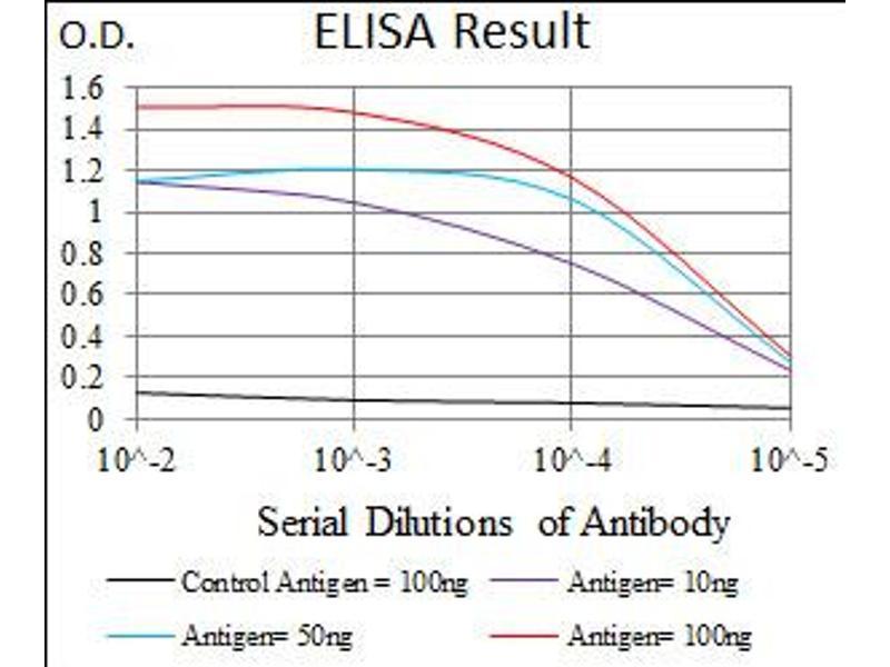 image for anti-E2F Transcription Factor 1 (E2F1) antibody (ABIN1491636)