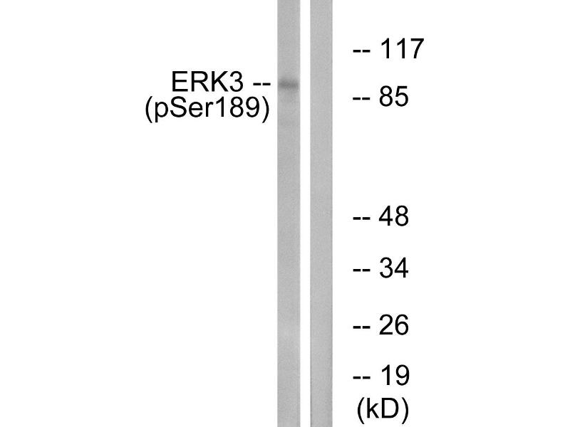 Image no. 2 for anti-Mitogen-Activated Protein Kinase 6 (MAPK6) (pSer189) antibody (ABIN1576357)