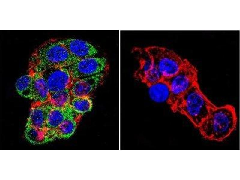 Immunofluorescence (IF) image for anti-Nuclear Receptor Subfamily 3, Group C, Member 2 (NR3C2) antibody (ABIN152721)