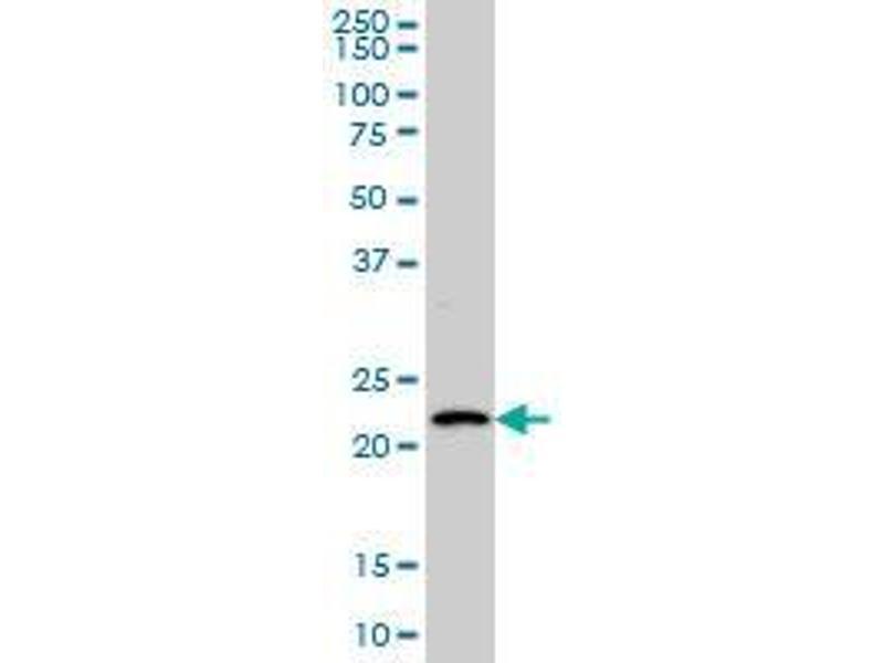 Immunohistochemistry (IHC) image for anti-BARX Homeobox 1 (BARX1) (AA 1-101) antibody (ABIN394232)