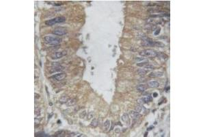Immunohistochemistry (IHC) image for anti-Tumor Necrosis Factor (TNF) antibody (ABIN6269443)