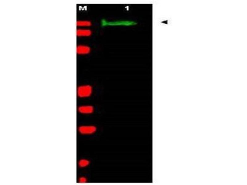 Western Blotting (WB) image for anti-Slit Homolog 2 (Drosophila) (SLIT2) antibody (ABIN269896)