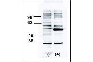 Western Blotting (WB) image for anti-BLK antibody (B Lymphoid Tyrosine Kinase) (AA 1-30) (ABIN392087)